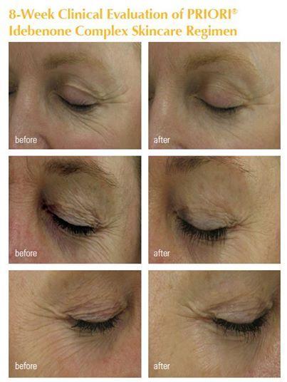 fbfc56b974b Pin by Elaine's Beauty Spot on Skin Care | Beauty makeup, Skin Care ...