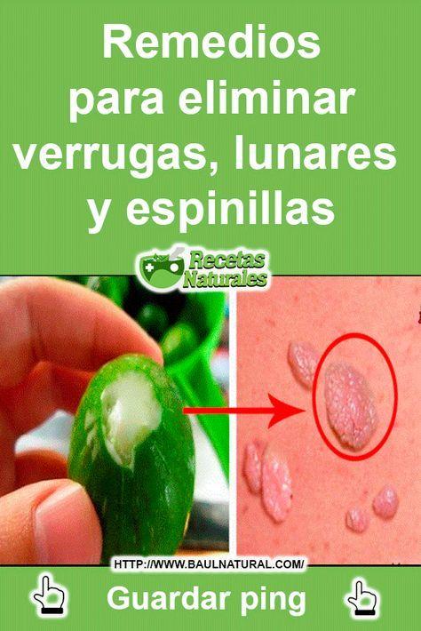 remedios caseros para combatir las verrugas genitales