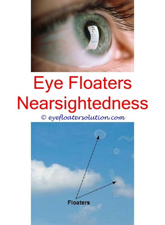 The phrase eye floaters and masturbation