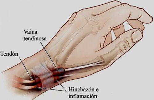 Y manos de dolor fibromialgia pies en