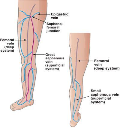 Venous Disease Vein Diagram Us Venous Pinterest Varicose
