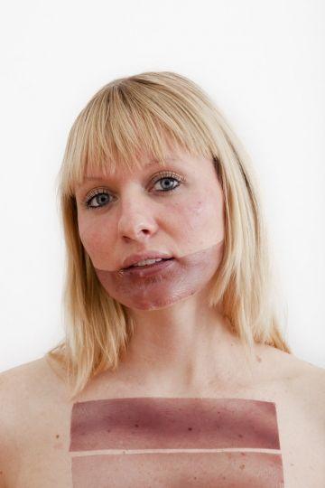 qué significa dermatografía