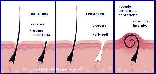 Follicolite da depilazione
