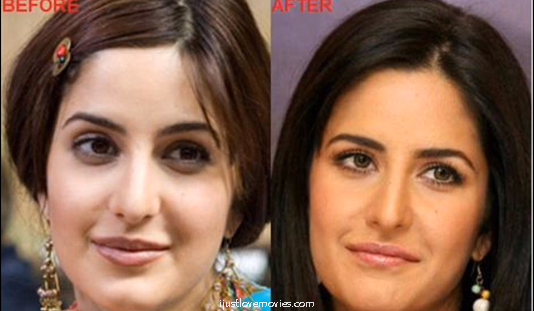 Katrina Kaif Before And After Nose Katrina Kaif Plastic S...