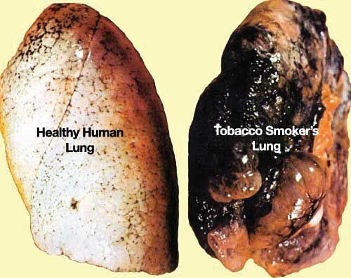 Lung cancer is an example of latent disease where a person may ...