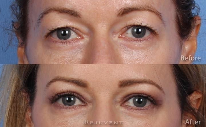 Pin on Hooded Eyes