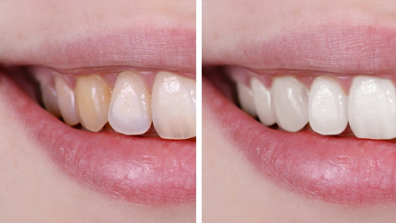 Teeth to photoshop how whiten on