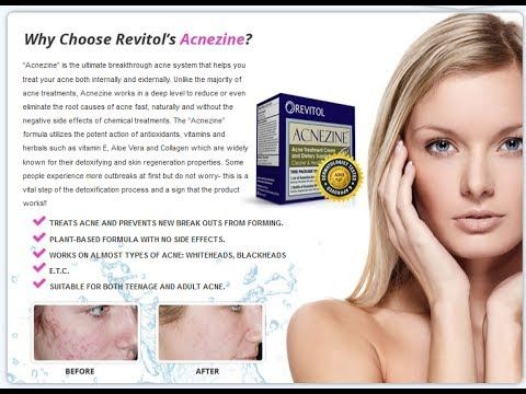 How To Remove Pimples Overnight Revitol Acnezine Cream Using How