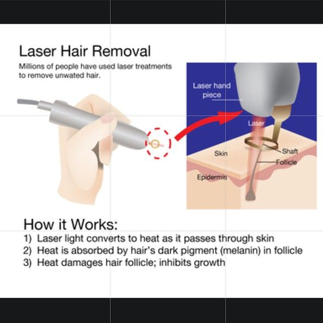 How laser works. Join us today to be #hairfree #carefree #laserhairremoval#laser#laserclinic#beautyclinic#beautiful#like4like#laseraway#liverpool#xlaserhairclinic#amazing#results#resultslaser#amazingresults#instagram#instafun#instalike#instahub#instagood#instabeaut#instaglam#igers#ig#instacomment#follow#followme#wow#educatelaser#liverpoolbeauty