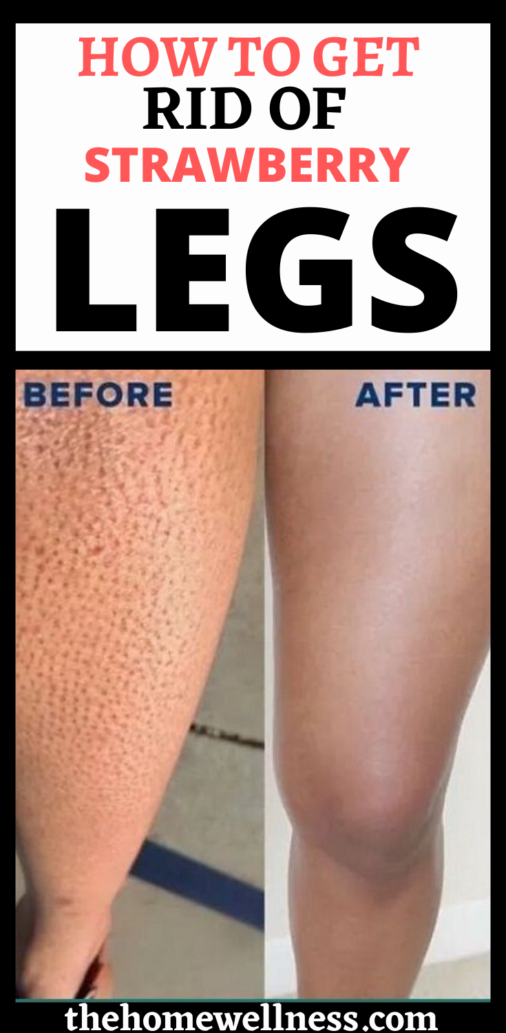 Can You Get Acne On Your Legs How To Get Rid Of Strawberry Legs In 2020 Strawberry Legs Shaving Legs Skin Bumps