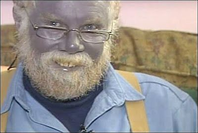 The Blue People of Troublesome Creek, Kentucky ~ a result ...
