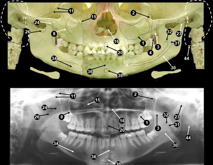 Dentistry lectures for MFDS/MJDF/NBDE/ORE: Anatomical Landmarks Of ...
