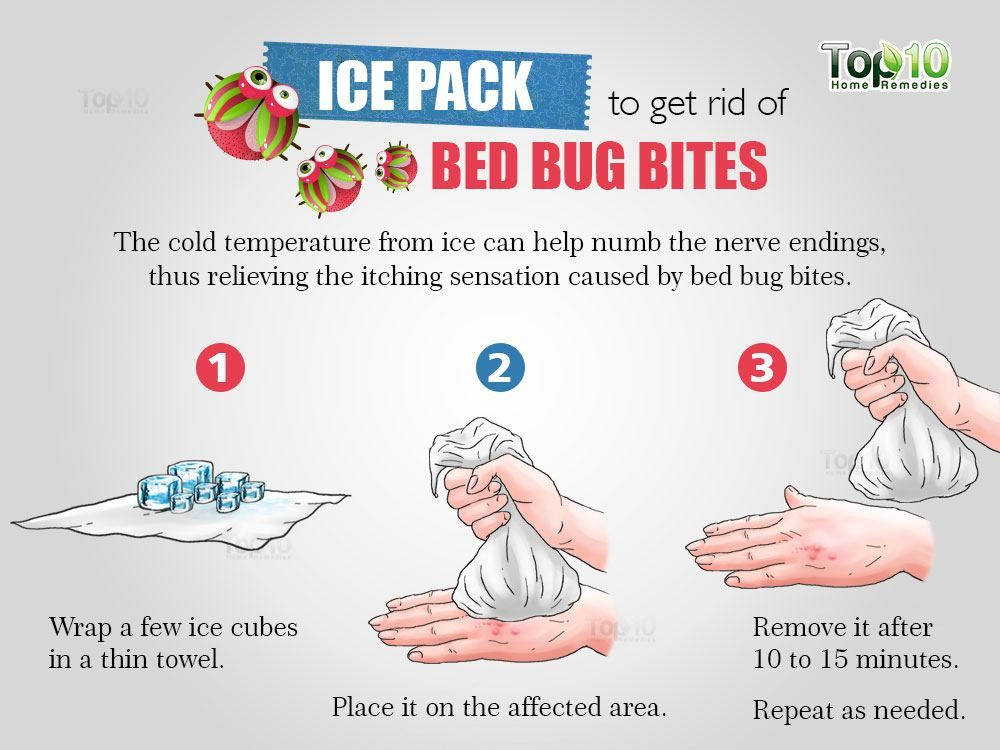 How To Get Rid Of Bed Bug Bites With Images Bed Bug Bites