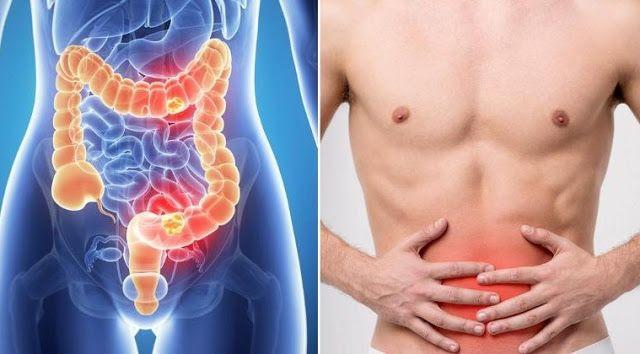 Los 7 signos de cáncer de colon que todos ignoran ~ Proteger ...