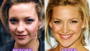 Kate hudson before plastic surgery