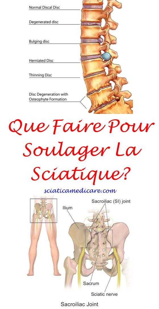 Nerf Sciatique Anatomie | Pinterest