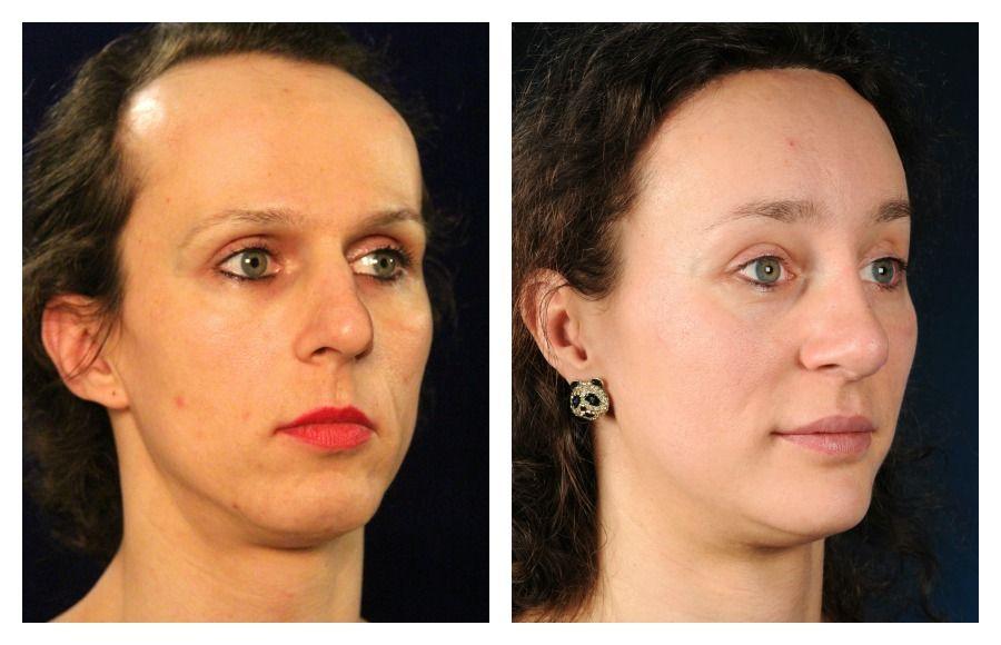 Boy receives facial feminization pic 605