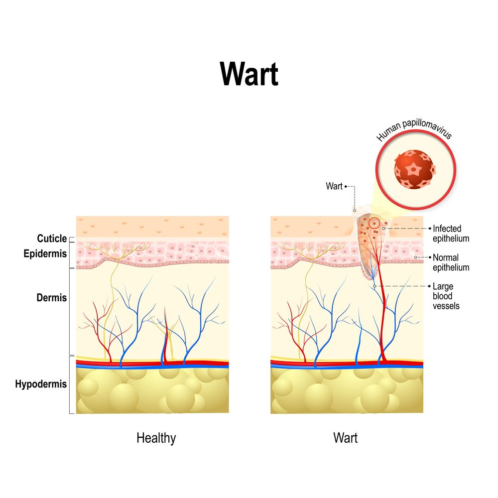 Hpv warts last how long. STI - What Are Genital Warts? - mednews.ro hpv virus in keel