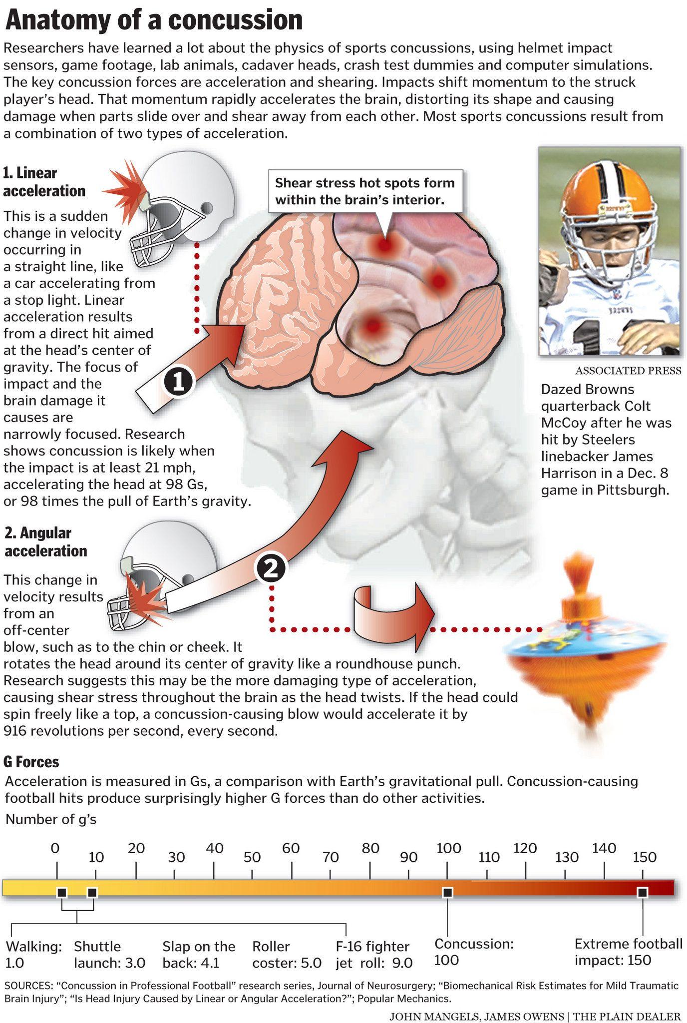 Anatomy of a concussion   medizina   Pinterest   Anatomy, Brain ...