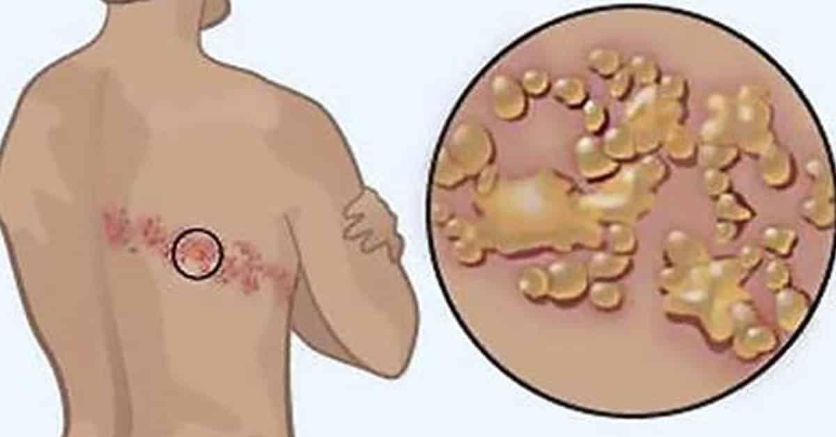 infeccion generalizada por hongos