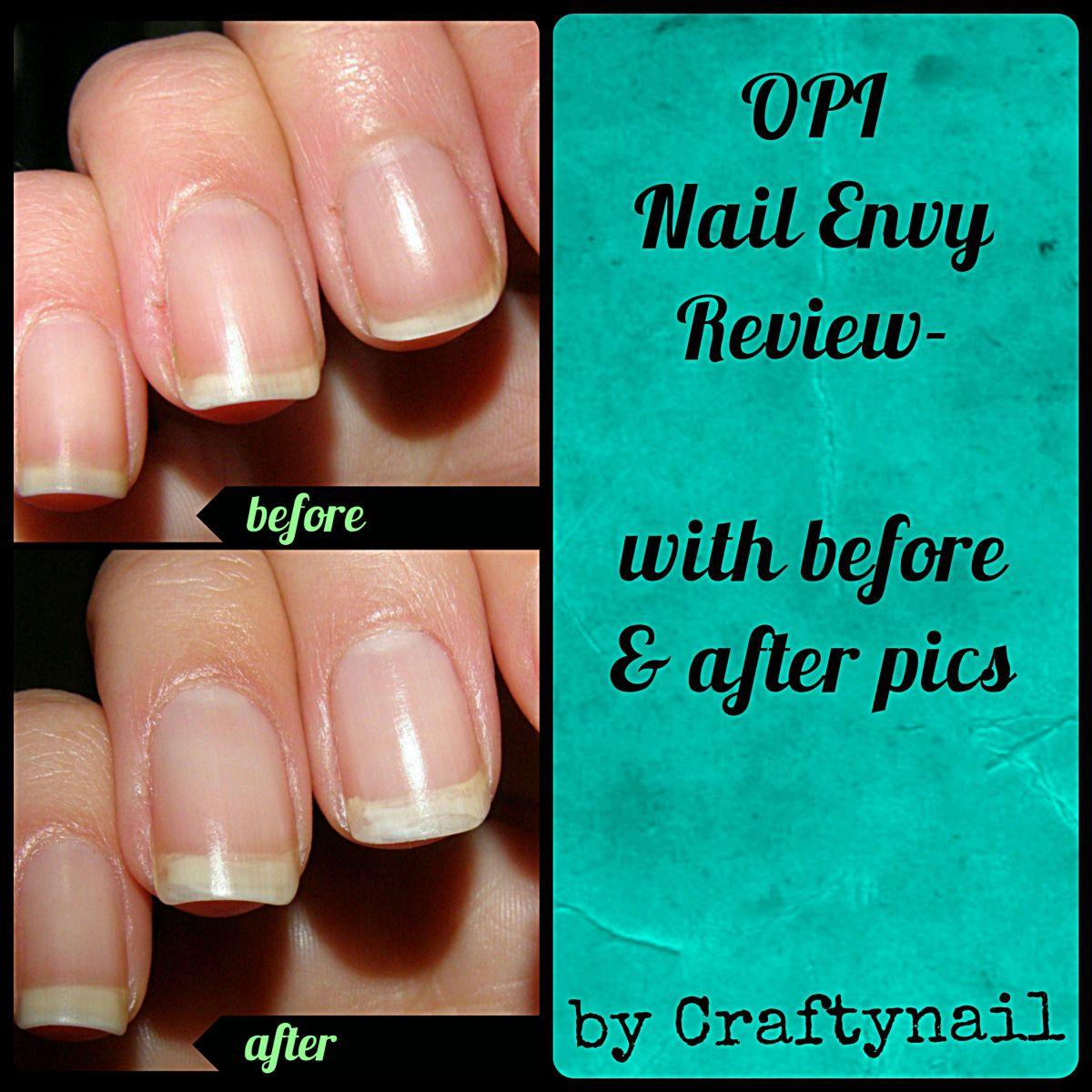 opi nail envy review | nail care hq | Pinterest | Opi nail envy ...