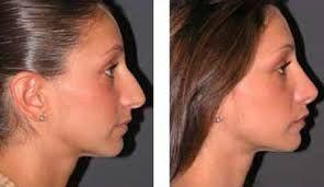prima dopo chirurgia naso - Cerca con Google