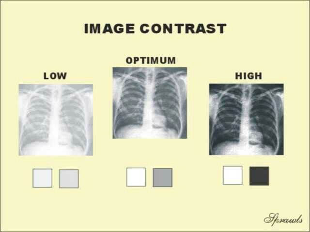 Contrast Xray Tech Radiology Student Medical Radiography