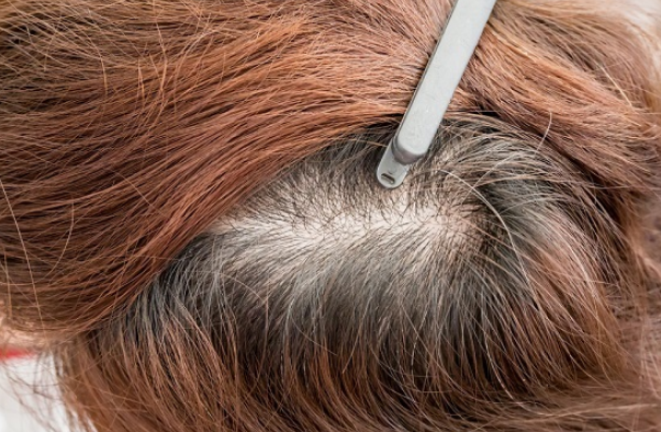 كيفية علاج تقصف الشعر من الامام وتطويل الشعر بدون قص Hairstyles For Thin Hair Reduce Hair Loss Hair Loss