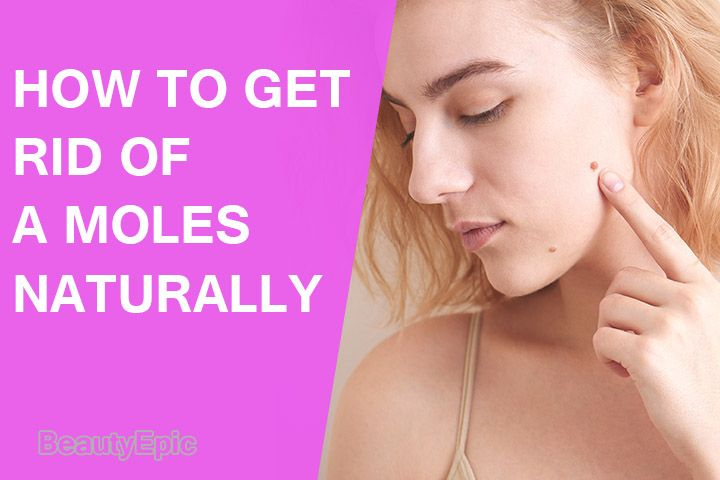 How to get rid of moles naturally moles on face how to