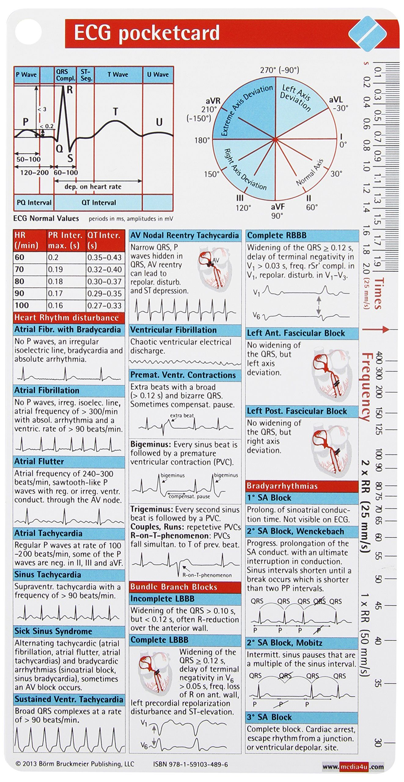 ECG Pocketcard: Bbp: 9781591034896: Amazon.com: Books | Medical ...