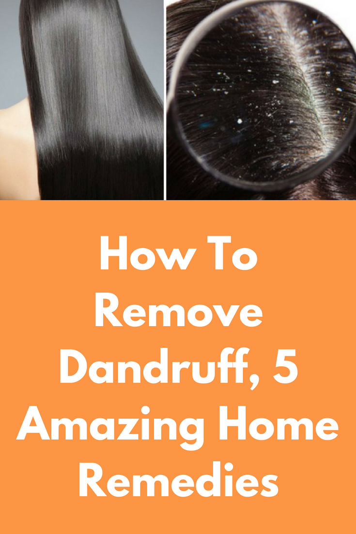 How To Remove Dandruff 5 Amazing Home Remes Is A Very Common Problem It Occurs Either Due Over Dryness Of Scalp Or Excessive Oil