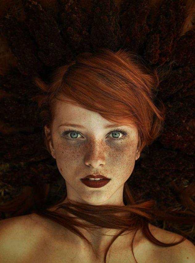 Porodica - Zdravlje i Ljepota: Pjegavi ljudi hipnotiziraju svojom jedinstvenom ljepotom
