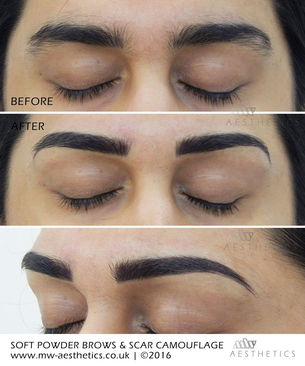 semi permanent eyebrows and scar camouflage Maquillaje