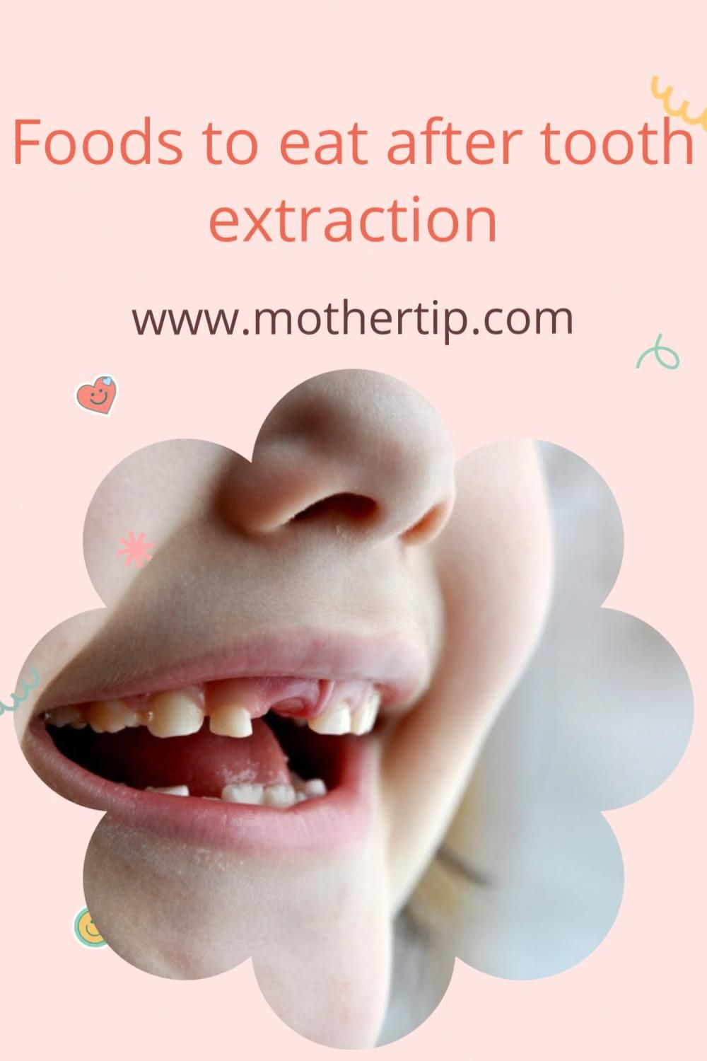 99 Soft Food Diet Recipes Eat After Tooth Extraction Braces Dentures Eating After Tooth Extraction Soft Foods Diet Food After Tooth Extraction