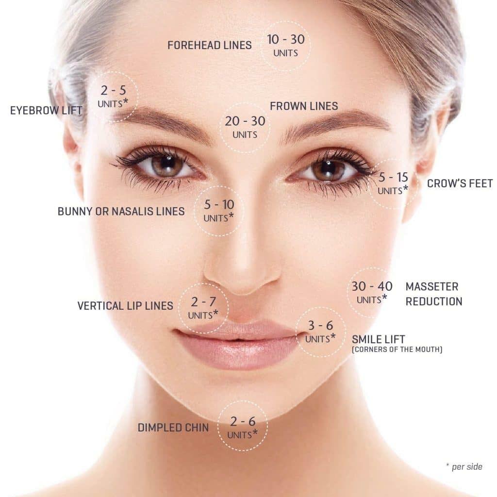 Botox Unit Amounts Per Area Botox Botox Injection Sites Botox