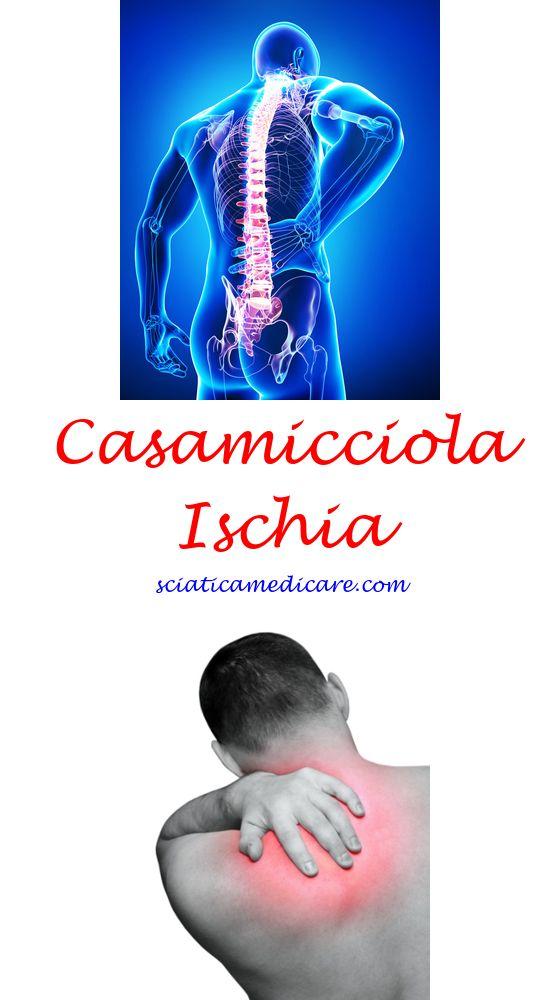 Ischias Hüfte Schmerzen Ischias, Ischias symptome und