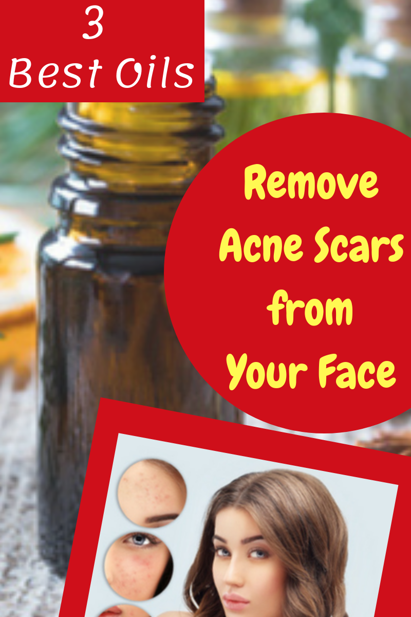Pin on Acne Scars Overnight
