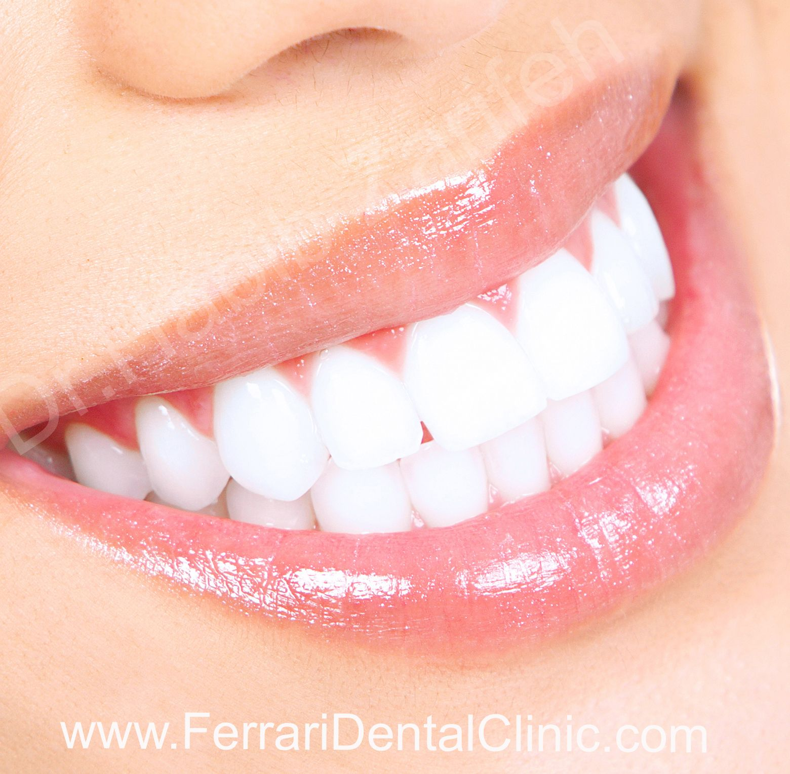 17 Best images about Hollywood smile Beirut Lebanon new website on ...