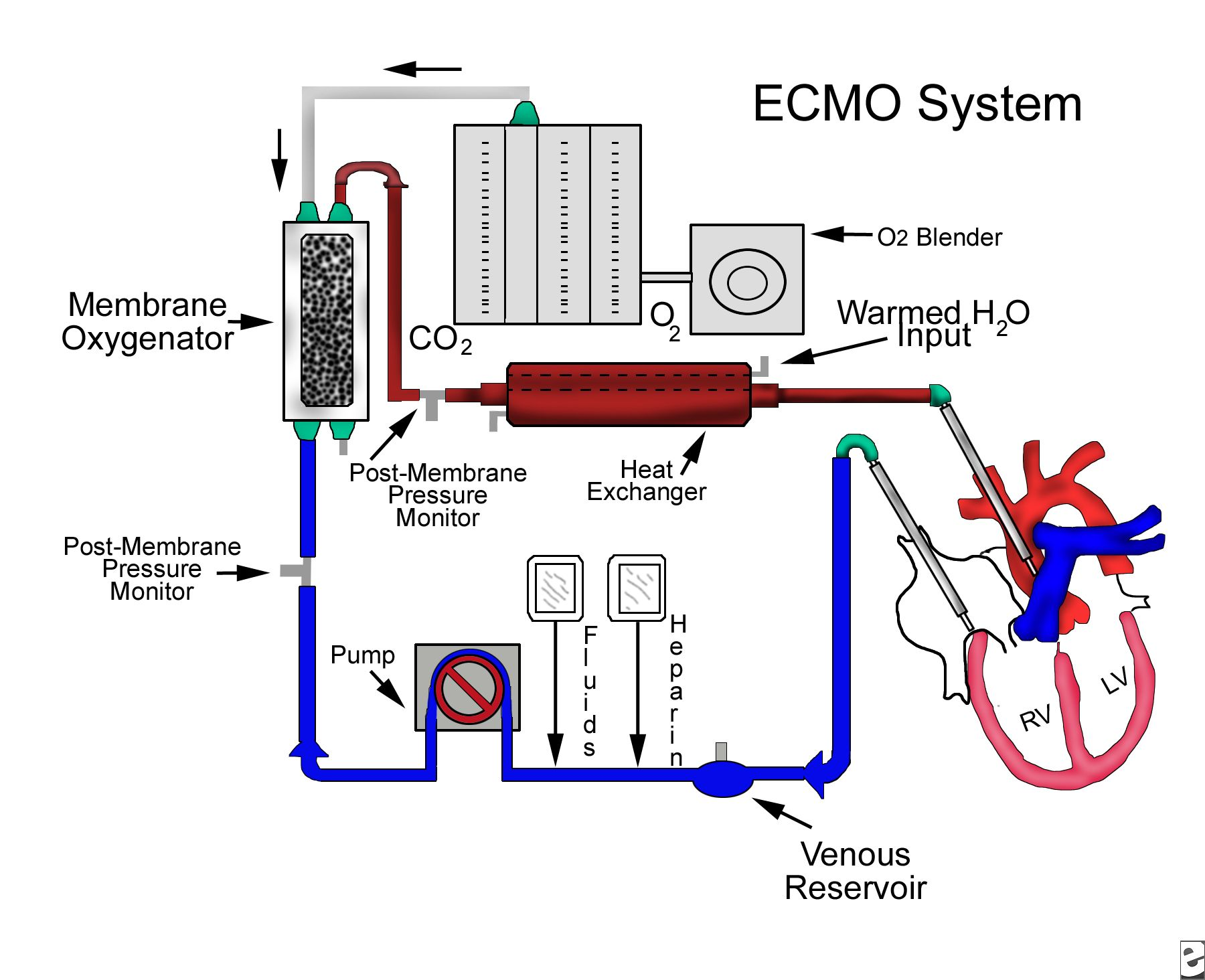 ECMO – the resuscitating technique of the future! | Icu ...