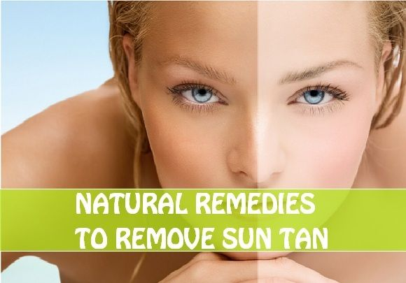 a29faef4b068a661311dd01e26c9c8eb - How To Get Rid Of Suntan Naturally At Home