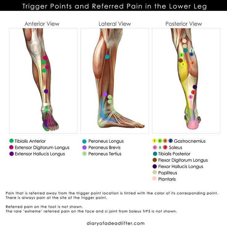 Image result for strengthening muscle trigger points legs | Muscle ...