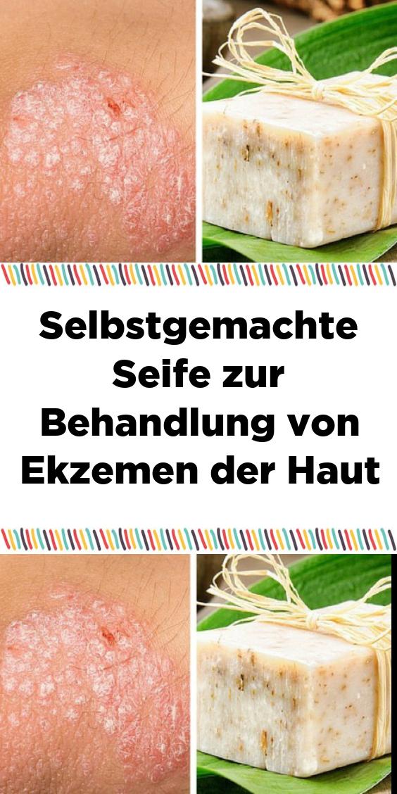 Selbstgemachte Seife zur Behandlung von Ekzemen der Haut – Gesunde rezepte