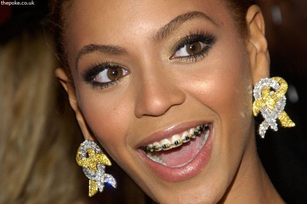 Celebrities Wearing Braces!!! - Pinterest