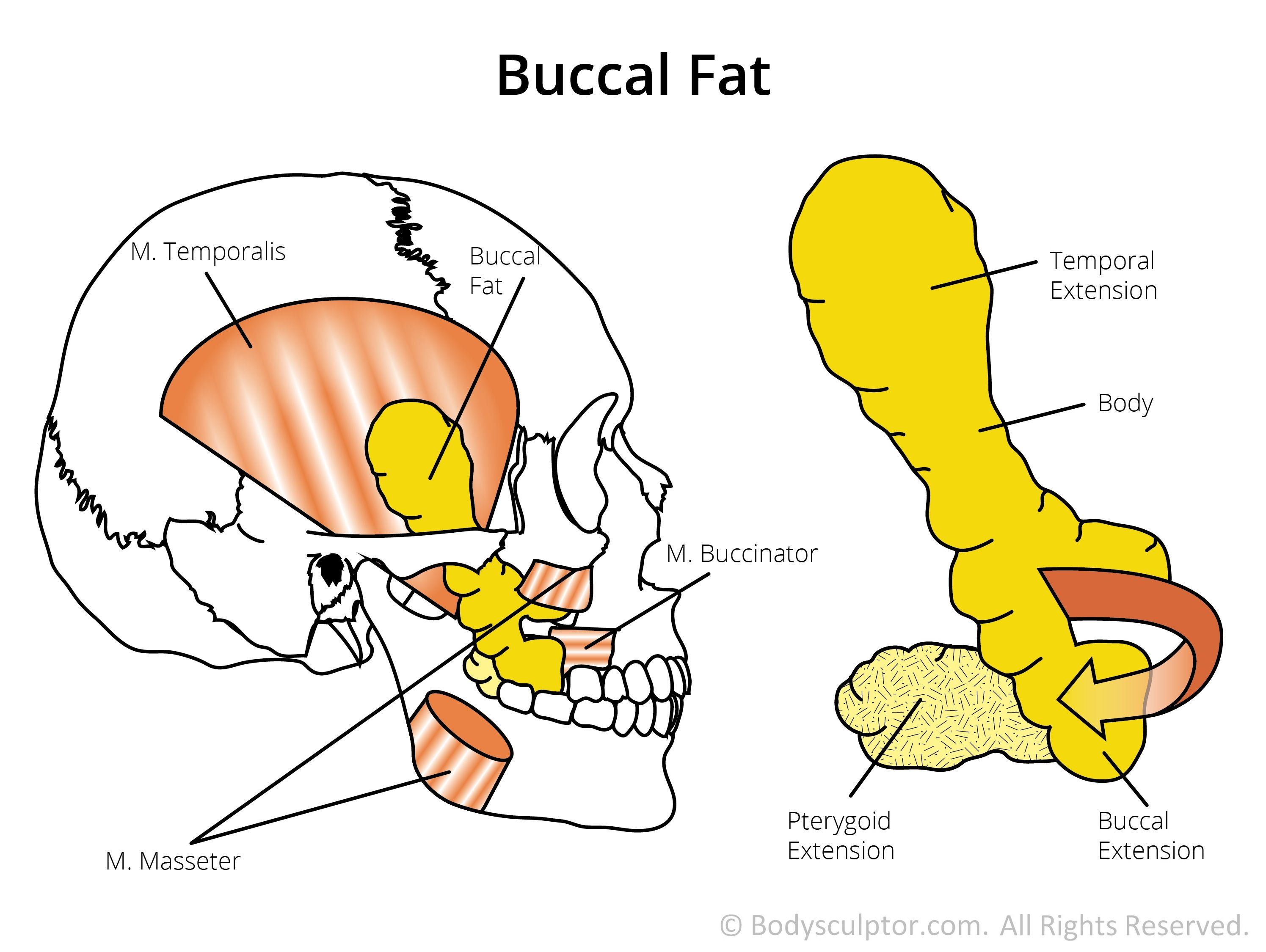 Bucchal Cheek Fat Diagram | Buccal Fat Pad Removal | Cheek