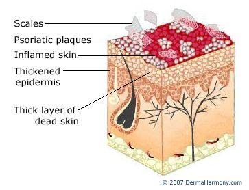 diagram of psoriatic skin   home remedies for dandruff, how to cure dandruff,  dandruff remedy  pinterest