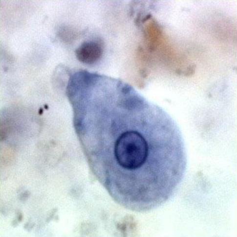 Entamoeba histolytica (trophozoite) | Motility ...
