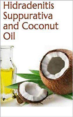 Hidradenitis Suppurativa and Coconut Oil