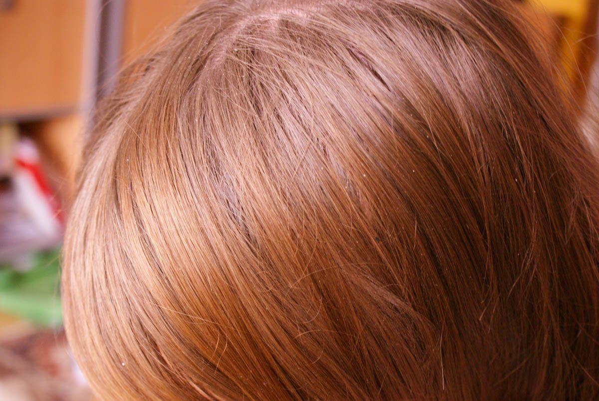 wypadanie włosów i swędzenie skóry