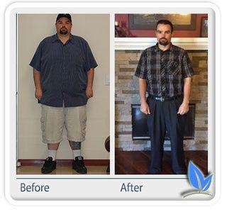 weight loss surgery oklahoma city ok