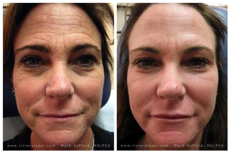 Image Result For Fraxel Laser For Wrinkles Before And